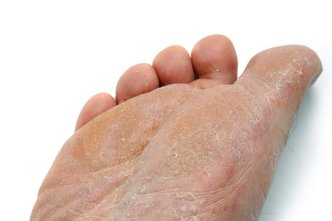 Great Falls Podiatrist | Great Falls Athlete's Foot | MT | Bruce D. Fisher |